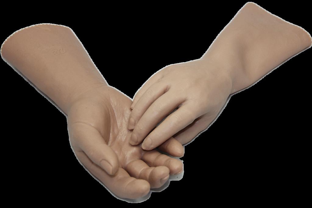 proteza dłoni wykonywana w zakładzie ortopedycznym Relax-med