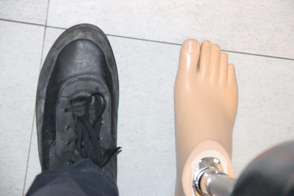 proeza nogi dla pacjentów po amputacji