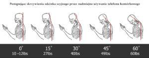Choroba naszych czasów ' SMS-owa szyja '
