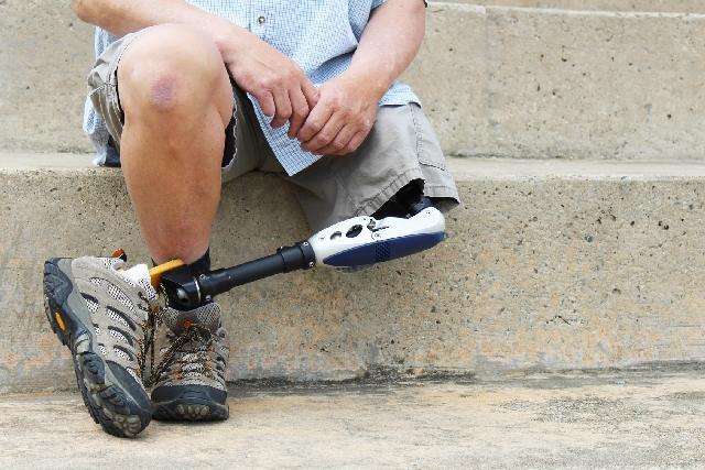 Proteza nogi a sprawne funkcjonowanie